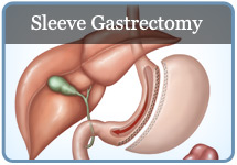 Sleeve Gastrectomy Tucson