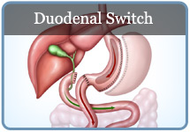 Duodenal Switch Procedures in Tucson