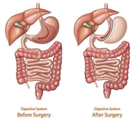 Sleeve Gastrectomy | Tucson Bariatric