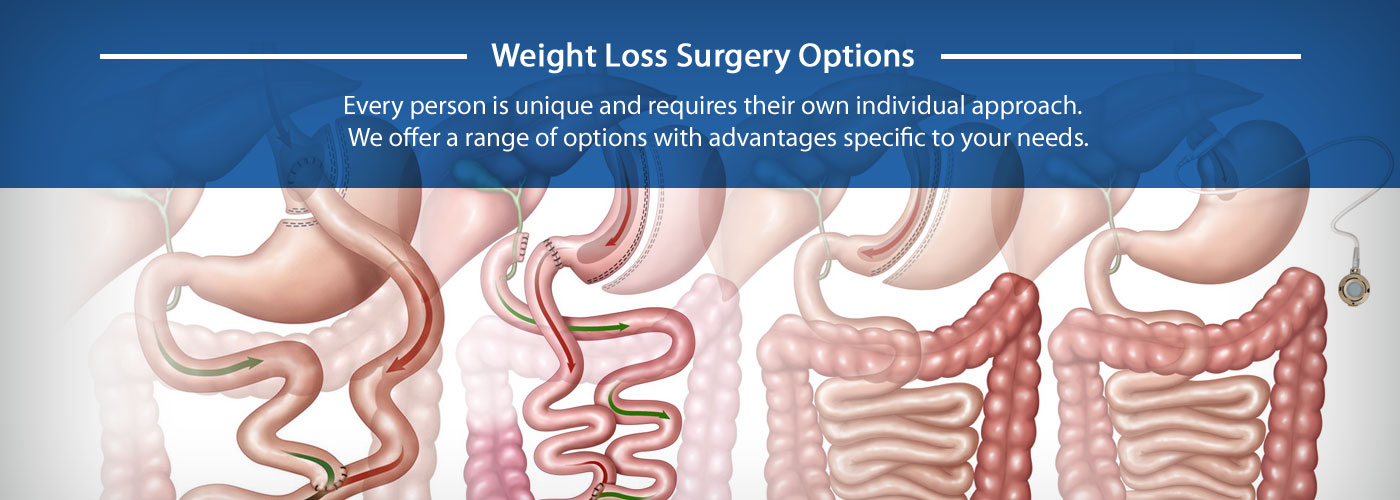 Weight Loss Surgery Options in Tucson